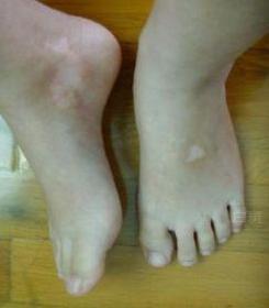 左大腿白癜风诊断该留意些什么